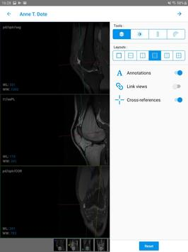 IMAIOS Dicom Viewer screenshot 6