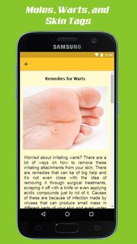 Mole Removal Remedies screenshot 7