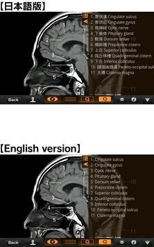 CT・MRI解体新書Lite スクリーンショット 2