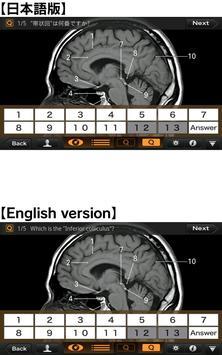 CT・MRI解体新書Lite スクリーンショット 3