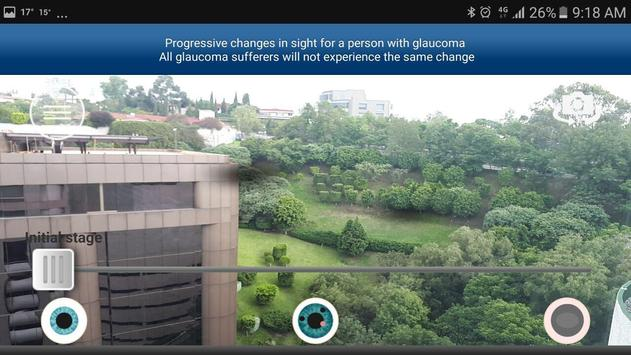 Glaucoma App screenshot 1