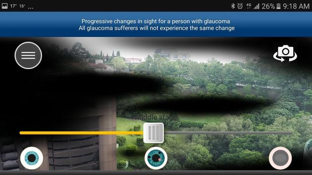 Glaucoma App screenshot 2