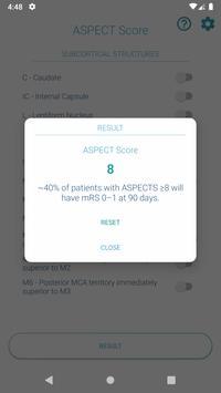 ASPECTS - ASPECT Score Calculator screenshot 1