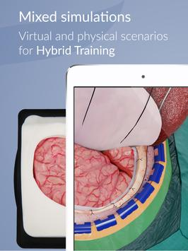 UpSurgeOn Neurosurgery screenshot 8
