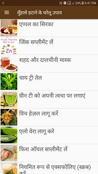 Acne and Pimples Home Remedies poster