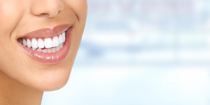 وصفات لتبييض الأسنان - بدون انترنت screenshot 1