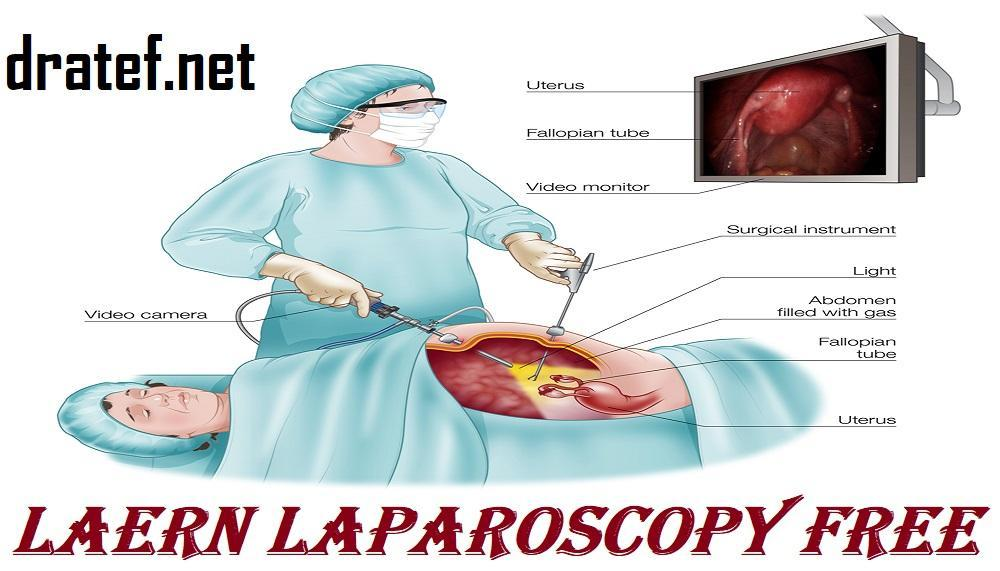 Learn Laparoscopy Free for Android - APK Download