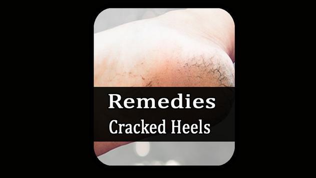 Remedies for cracked heels screenshot 1