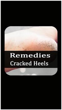 Remedies for cracked heels screenshot 2