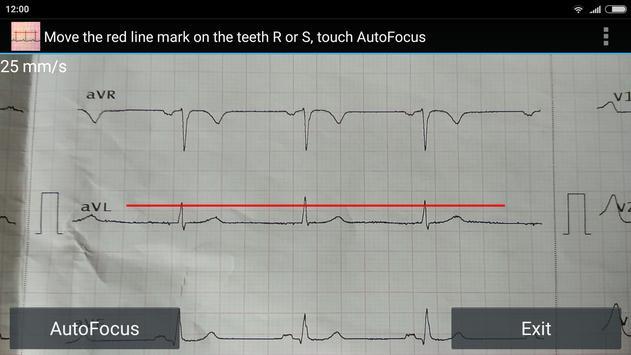 ECG Reader free screenshot 2