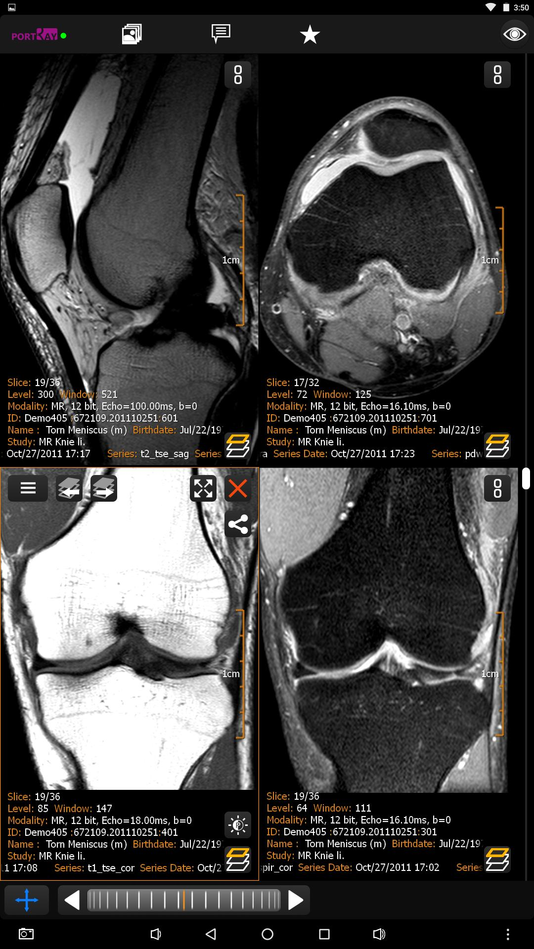 PORT-RAY: DICOM Viewer for Android for Android - APK Download