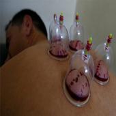 درمان جامع بیماری ها با حجامت icon